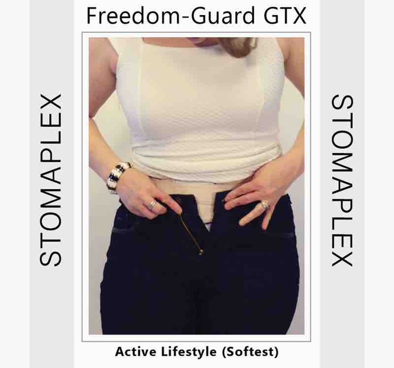 She buttons up her pants over the ileostomy
