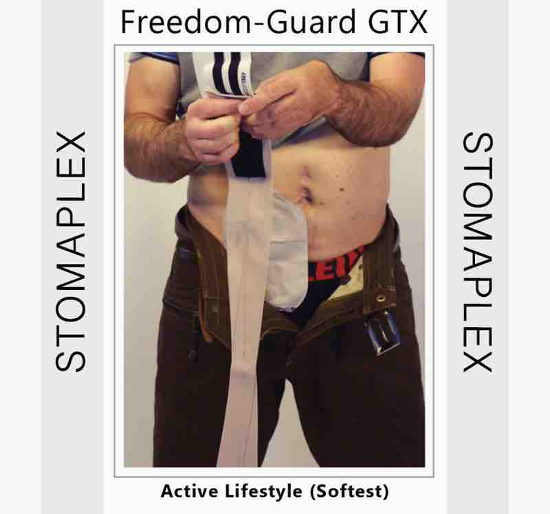 After the stoma guard is attached to the ostomy belt