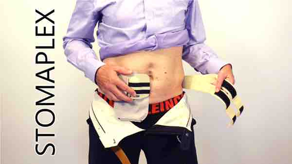 The stoma guard protects the stoma from the pressure of the belt.
