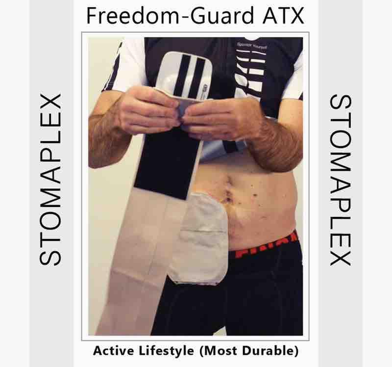 Man with ileostomy and in bike shorts shows ileostomy bag