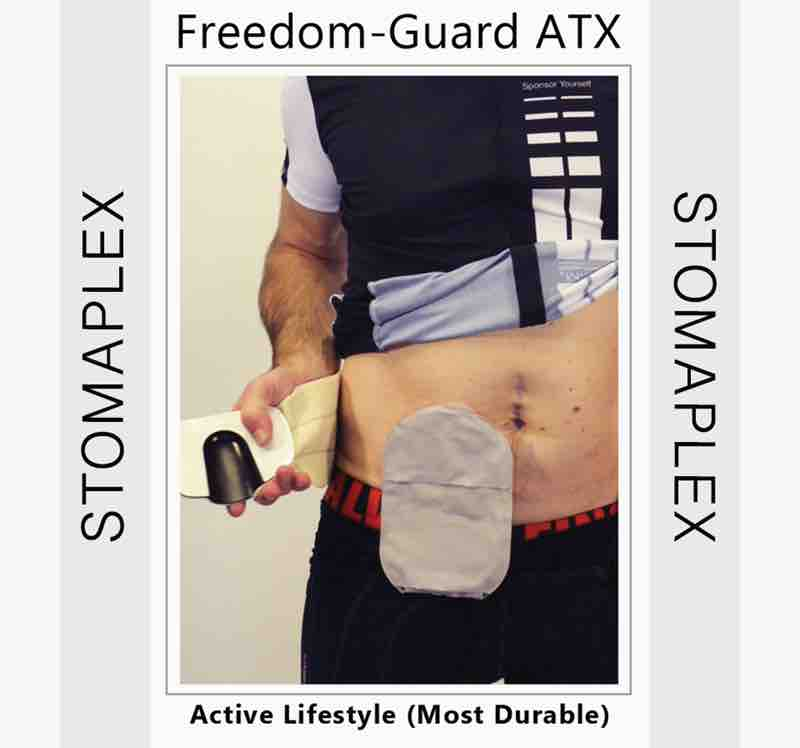 protect the stoma of an ileostomy with a stoma guard