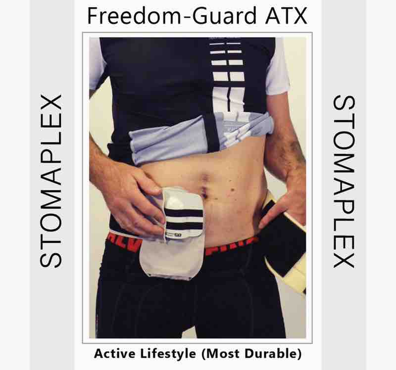 The ostomy belt on a man wearing a stoma guard is showing