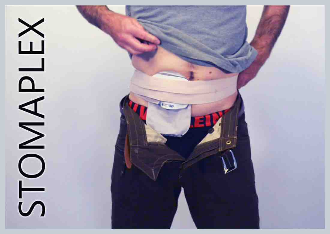Man show ileostomy bag by lifting shirt and ostomy belt, made by Stomaplex stoma guard, stoma guard belt with coloplast ostomy bag, ostomy protection for men