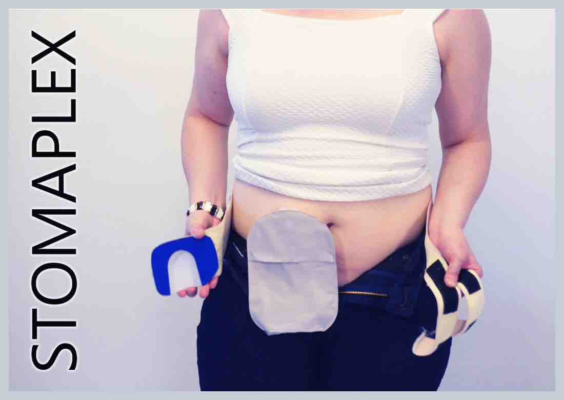 Women like the small size of the belt and guard, made by Stomaplex stoma guard, women pull down pants to show ostomy bag with an ostomy belt on her hips, ostomy belly button