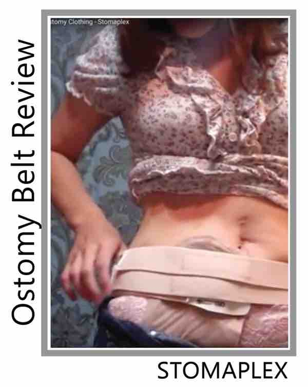girls pulls down pants and we see her ileostomy bag from hollister, the stomaplex stoma guard allows her to put the ostomy bag over her panties