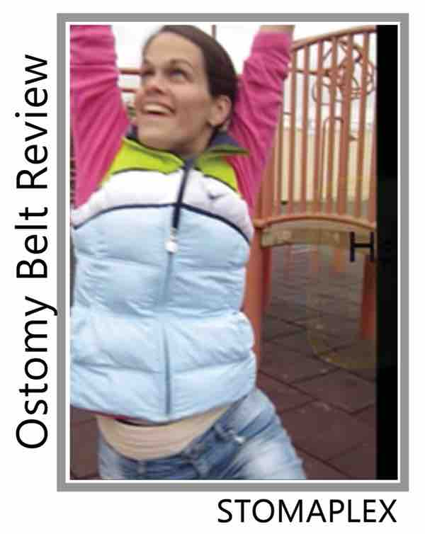 Protecting the stoma of an ileostomy with a stomaplex stoma guard, girl is confident with an ostomy belt.