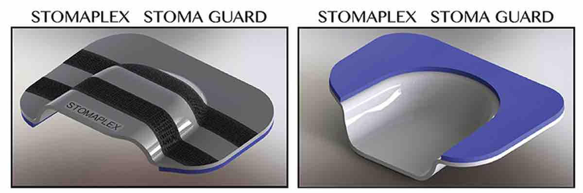Stoma Guard for Ostomy Belt