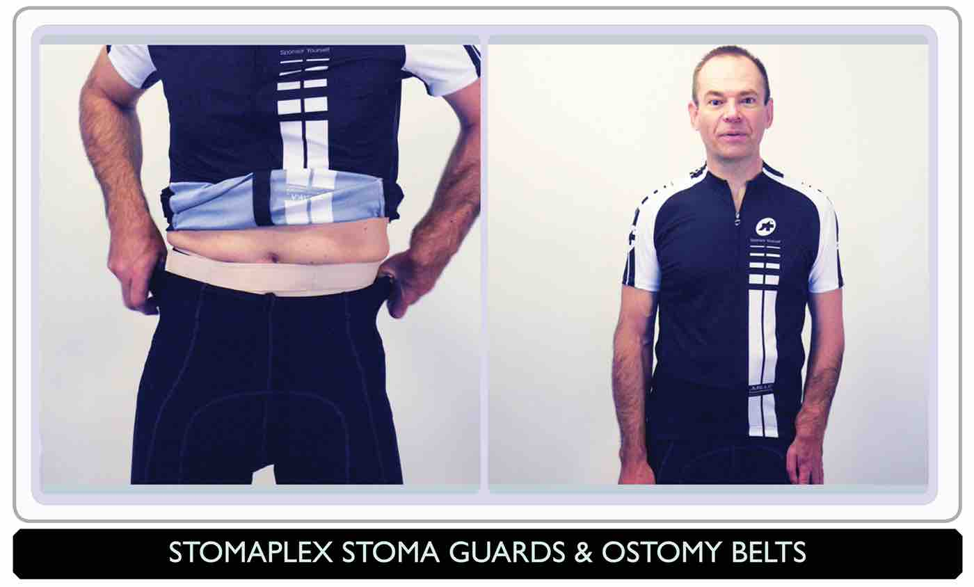 Ostomy belt, Parastomal Hernia Belt