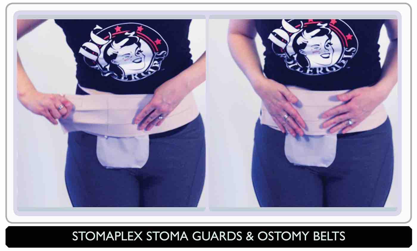 Ostomy belt, Parastomal Hernia Belt