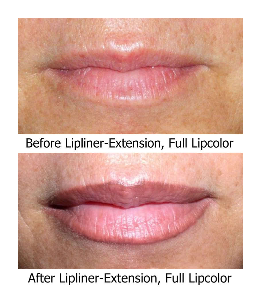 SofTap Lipliner/Full lipcolor Needles