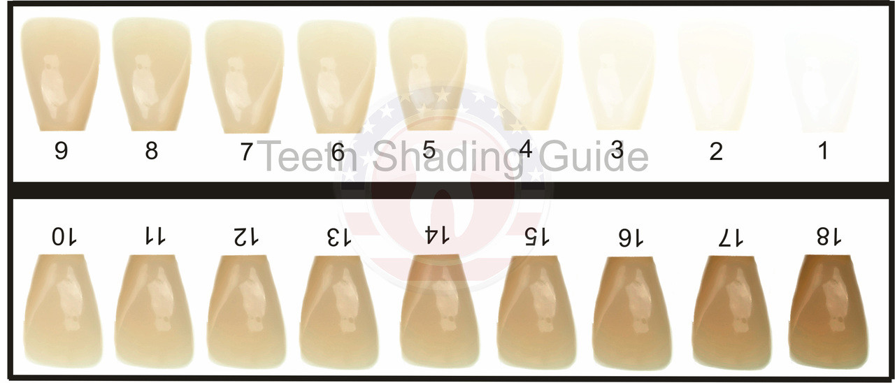 photo regarding Tooth Shade Chart Printable named Enamel Coloration Expert