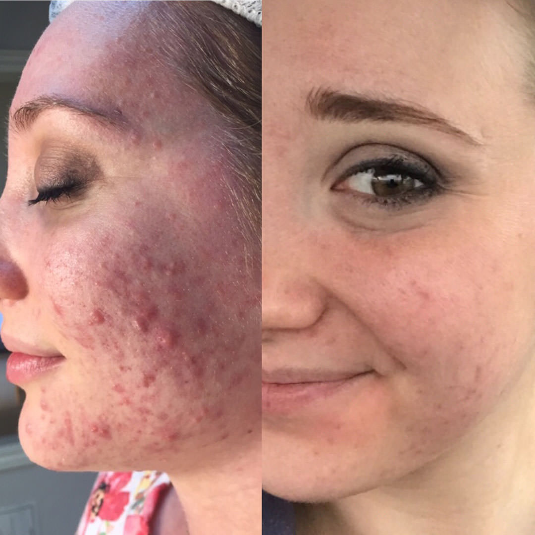 melissa-beautifulskin-acnefree-pimplefree-clearskin-acne-accutanefree-facereality-loriwardskincare-advancedskintherapy-loriward-pimples-dermatology.jpg