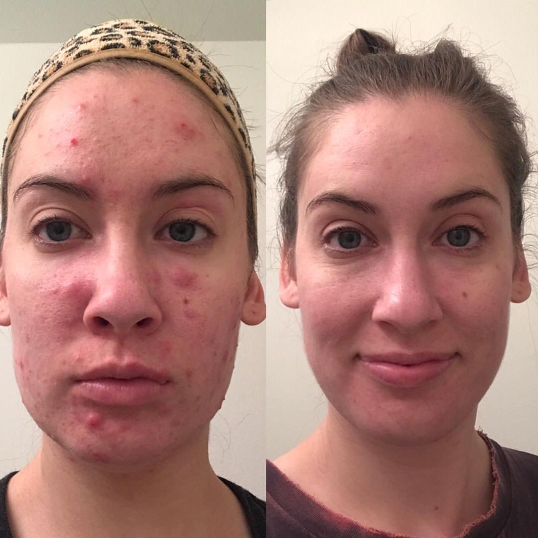 natashafront-natasha-beautifulskin-acnefree-pimplefree-clearskin-acne-accutanefree-facereality-loriwardskincare-advancedskintherapy-loriward-pimples-dermatology.jpg