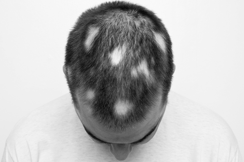 mans head with bald spots caused by alopecia areata -