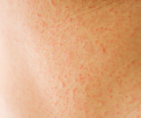 Gluten Sensitive?  Top Tips For Treating Sensitive Skin Types.