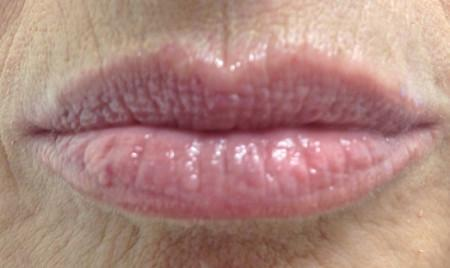 lip-after-large.jpg