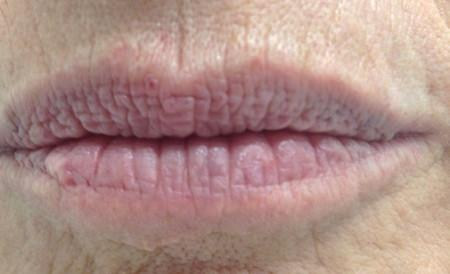lip-before-large.jpg