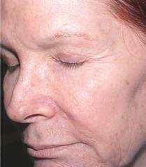 retinol-after-12-week.png