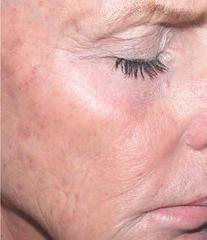 retinol-after.png