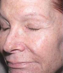 retinol-before-12-wk.png