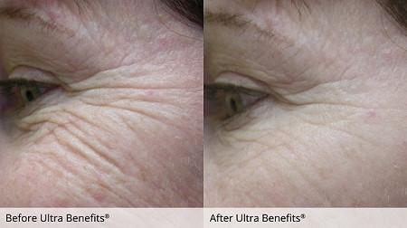 ultra-benefits-image.jpg