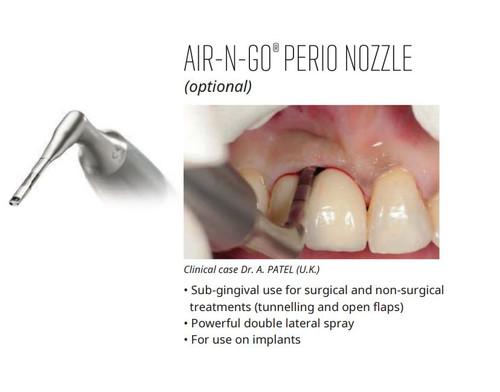Air-N-Go Perio Nozzle
