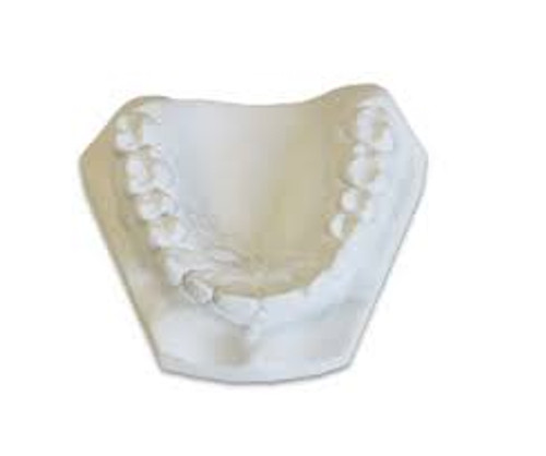 Lab Stone  Denstone 25 Lb Carton - White