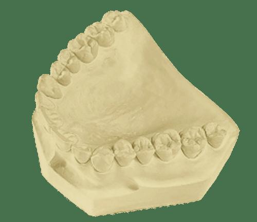 Lab Stone  Denstone 25 Lb Carton - Golden