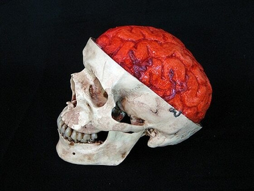 """Skull """"Aged"""" With Bloody Brain"""