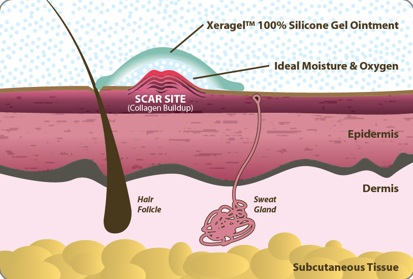 Xeragel on Scar Site
