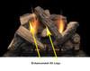 Monessen Stony Creek  Refractory Log Set, Choice of Vent Free Burner