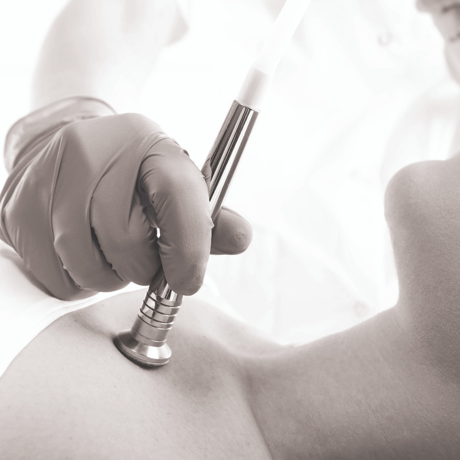 Microdermabrasion for back or chest