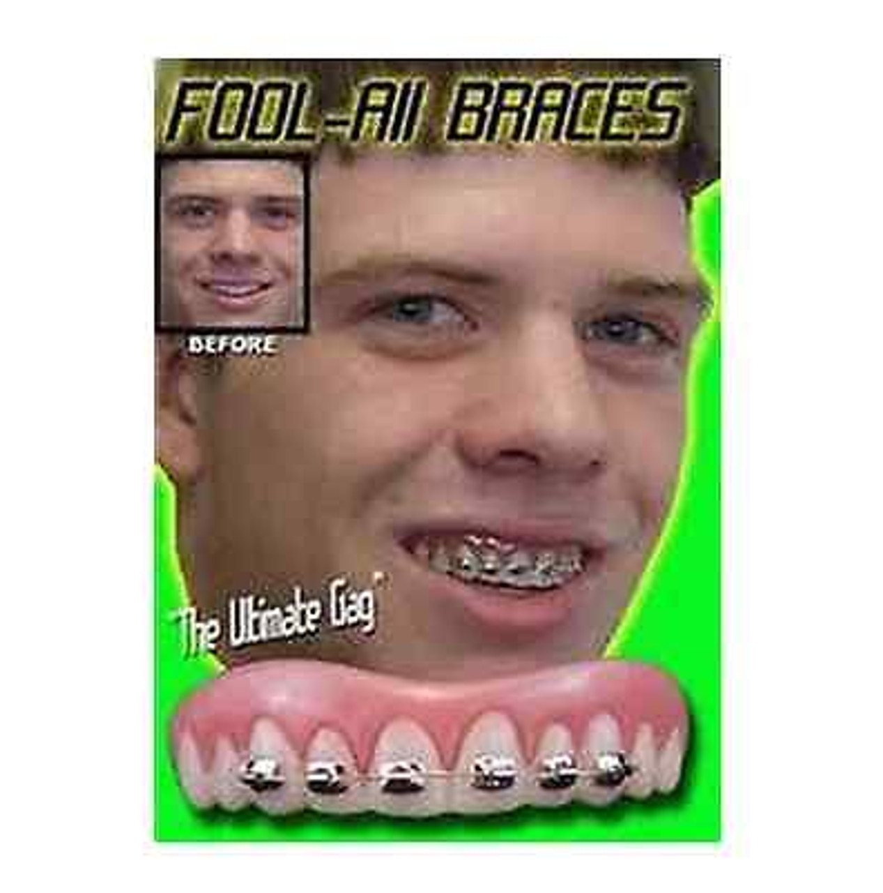 One Size, Small Billy Bob Instant Smile Fake Teeth