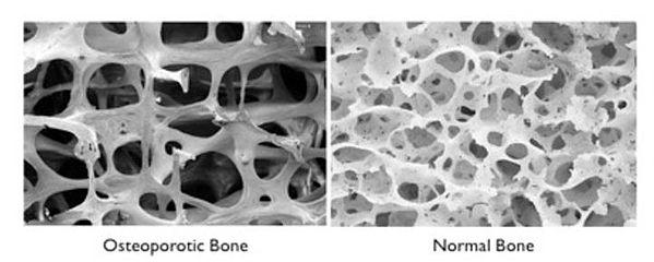 bonedensitybone.jpg