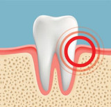 Gum Pain Causes, Relief, and Treatments
