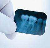 Impacted Wisdom Teeth: Symptoms, Types & Removal