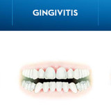 What is Gingivitis? Symptoms, Causes, and Treatments