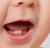 White or Brown Spots on Baby Teeth