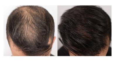 Nutrafol hair care