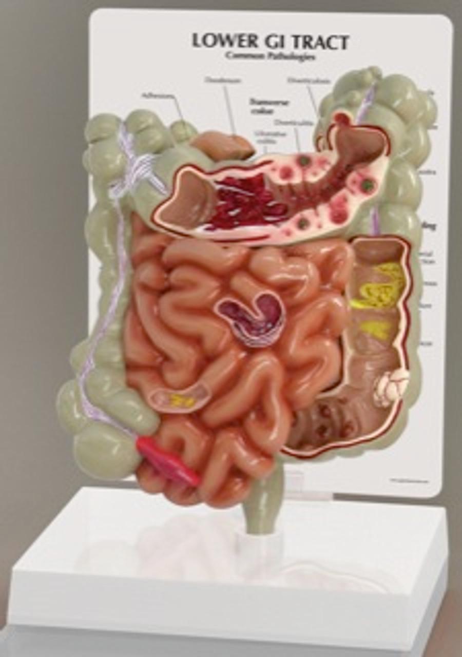 Lower GI Tract Anatomical Model