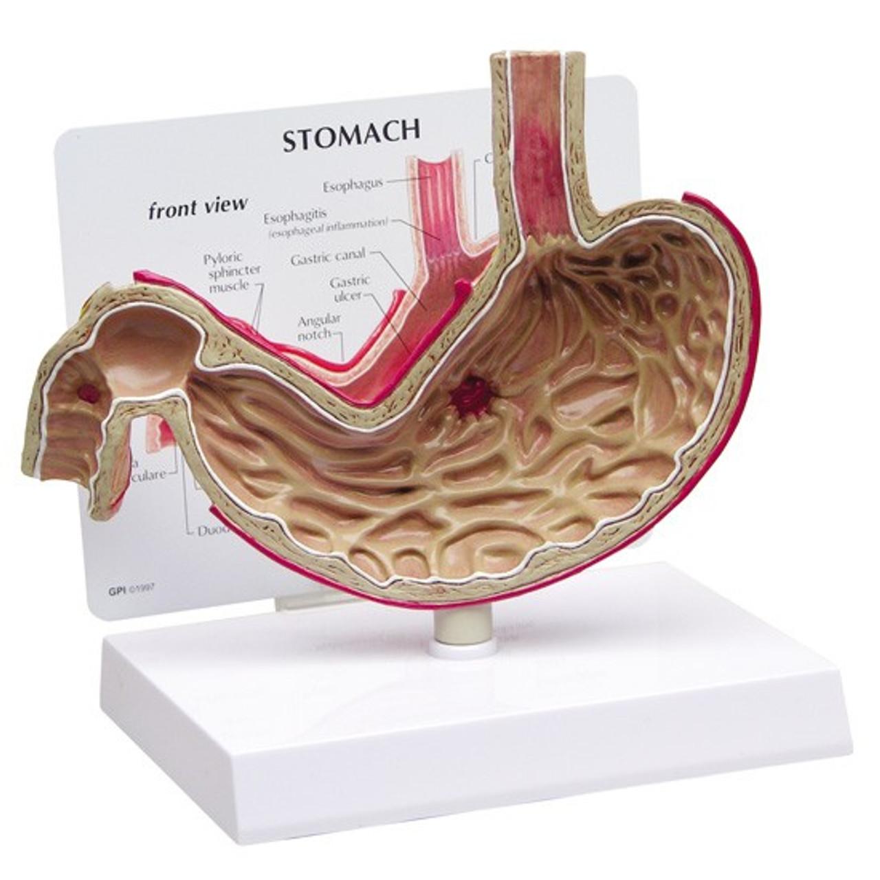 Stomach Ulcer Model