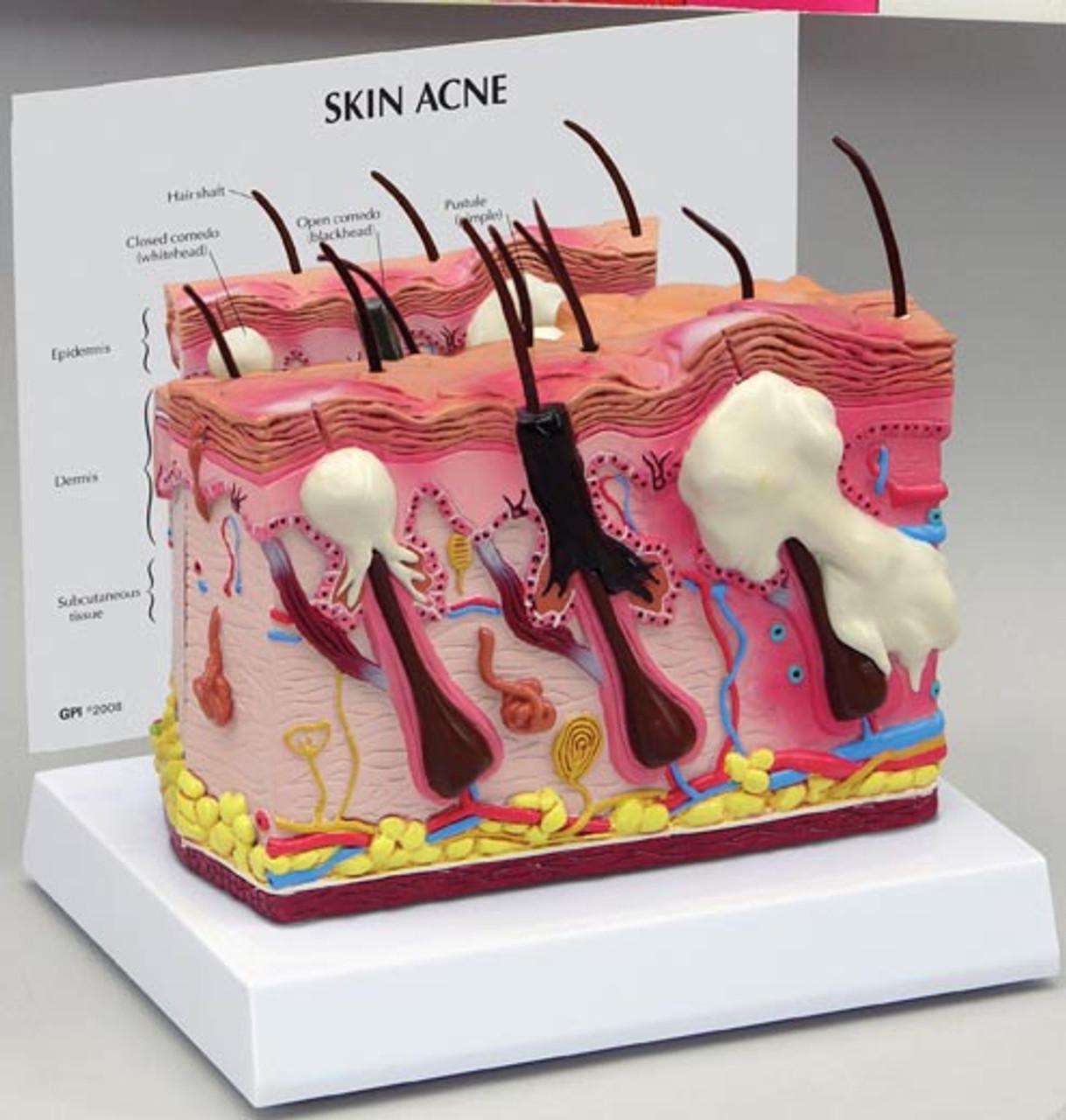 Acne Skin Model