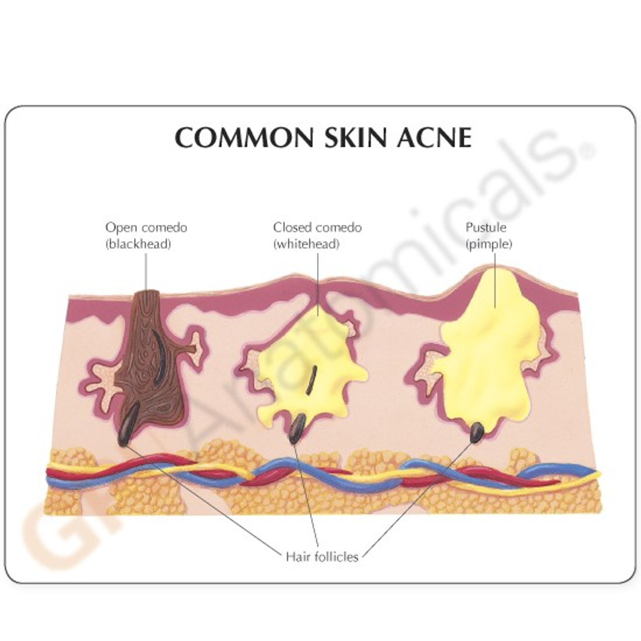 Skin Acne Model Description Card