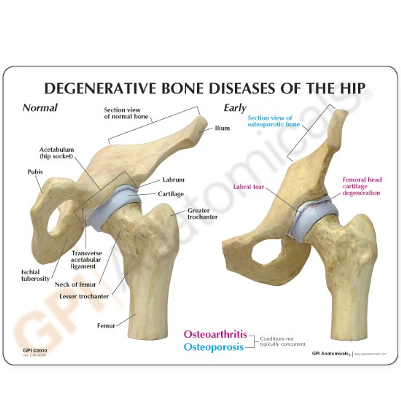 Arthritic Hip ,4-Stage Model Description Card