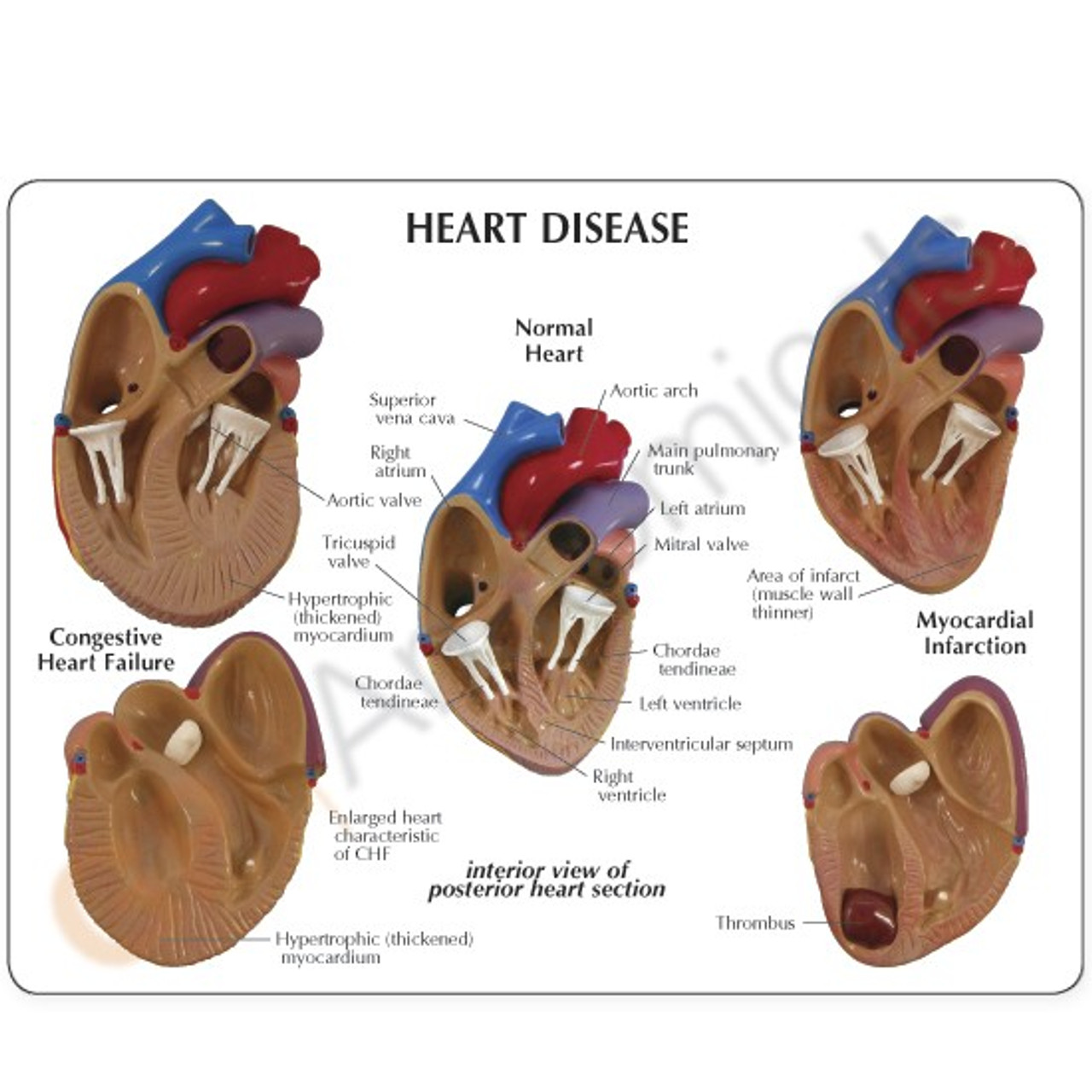 Heart Disease Model Description Card
