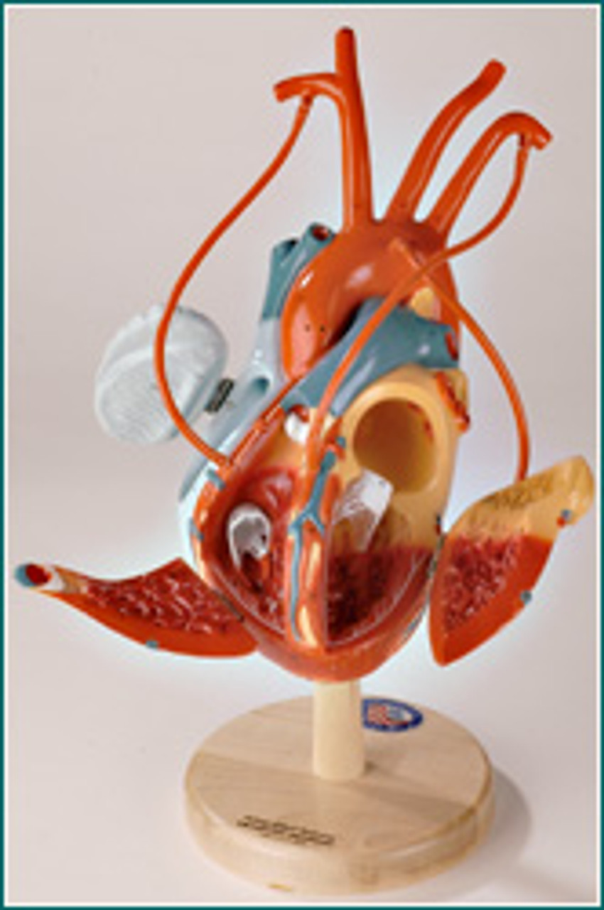 Heart with ByPass Anatomical Model-Disassembled