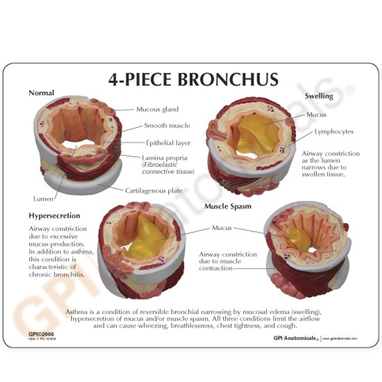 Lung Bronchus Model Description Card