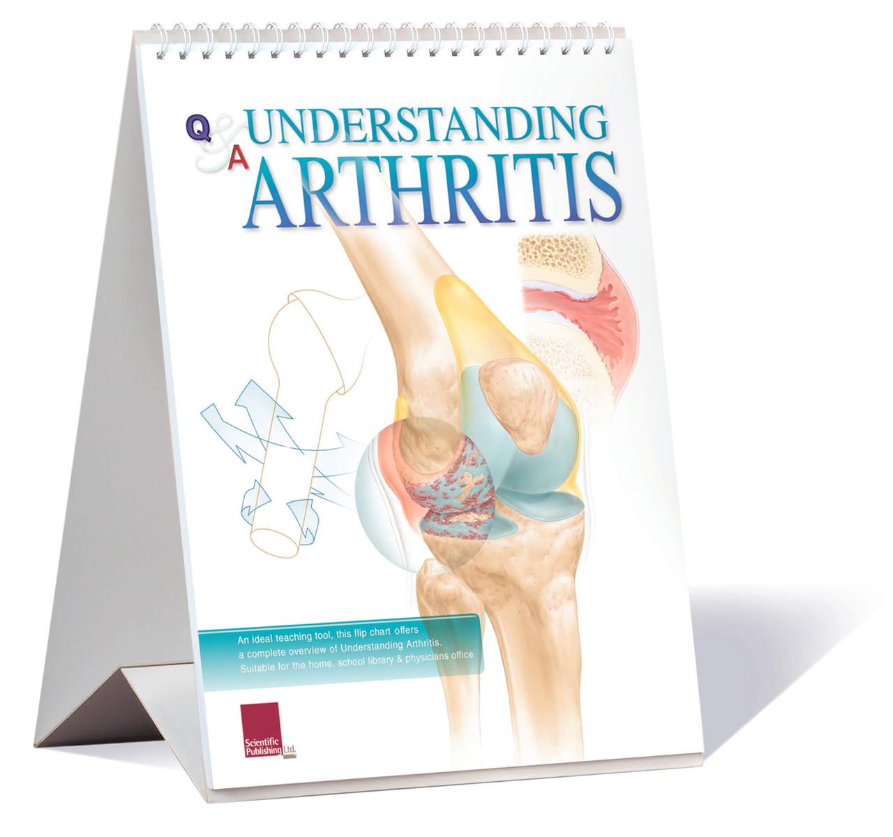Arthritis Educational Flip Chart