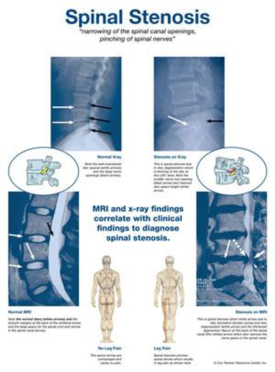 Spinal Stenosis Poster