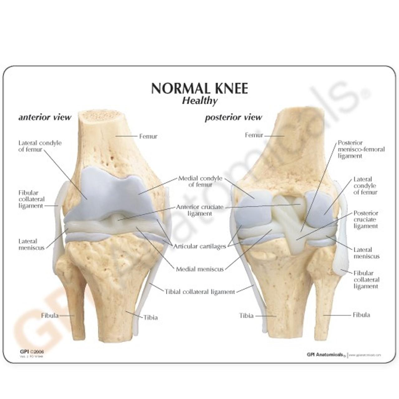 Osteoarthritis Knee Model Description Card